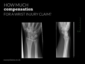 Wrist X-Ray Images